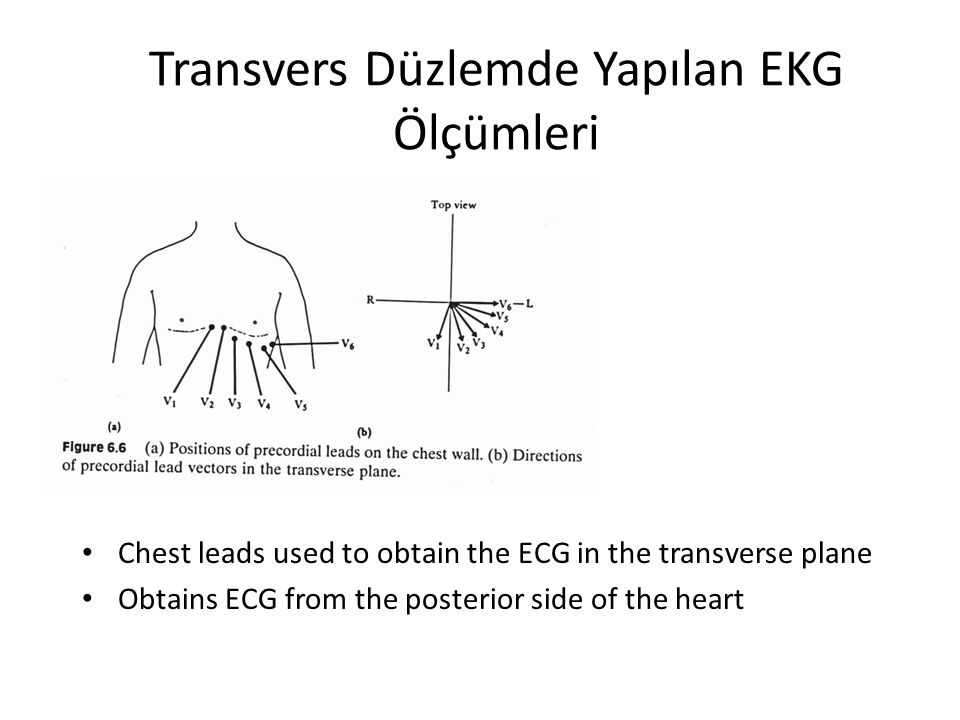 Transvers Düzlemde Yapılan EKG Ölçümleri Chest leads used to obtain the ECG in the transverse plane Obtains ECG from the posterior side of the heart