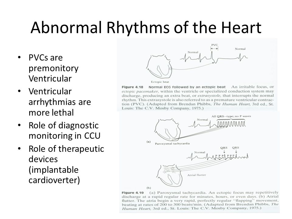 Abnormal Rhythms of the Heart PVCs are premonitory Ventricular Ventricular arrhythmias are more lethal Role of diagnostic monitoring in CCU Role of th