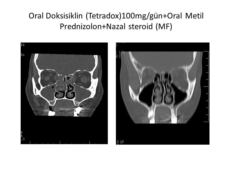 Oral Doksisiklin (Tetradox)100mg/gün+Oral Metil Prednizolon+Nazal steroid (MF)