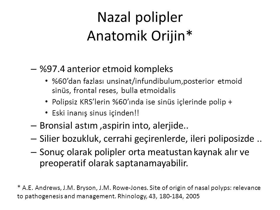 Nazal polipler Anatomik Orijin* – %97.4 anterior etmoid kompleks %60'dan fazlası unsinat/infundibulum,posterior etmoid sinüs, frontal reses, bulla etm