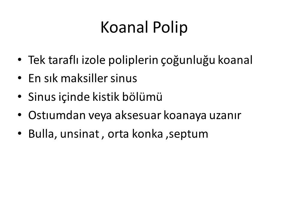 Koanal Polip Tek taraflı izole poliplerin çoğunluğu koanal En sık maksiller sinus Sinus içinde kistik bölümü Ostıumdan veya aksesuar koanaya uzanır Bu