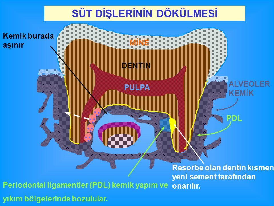 SÜT DİŞLERİNİN DÖKÜLMESİ ALVEOLER KEMİK DENTIN MİNE Resorbe olan dentin kısmen yeni sement tarafından onarılır. Kemik burada aşınır PDL Periodontal li