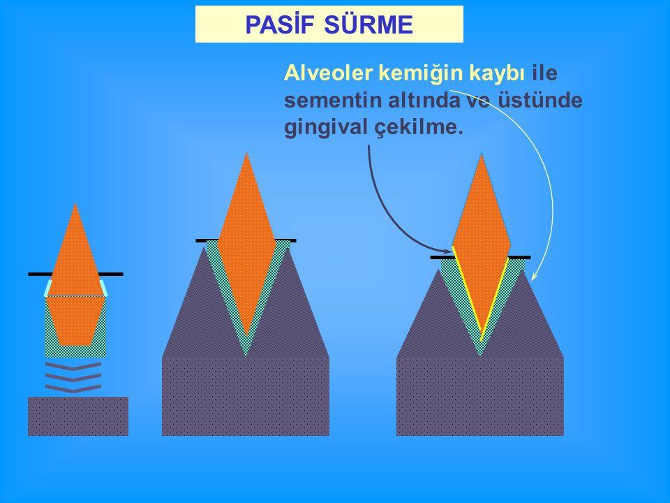 Alveoler kemiğin kaybı ile sementin altında ve üstünde gingival çekilme. PASİF SÜRME
