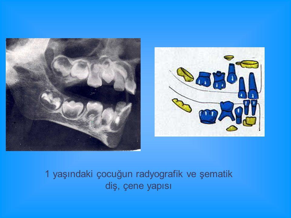 1 yaşındaki çocuğun radyografik ve şematik diş, çene yapısı