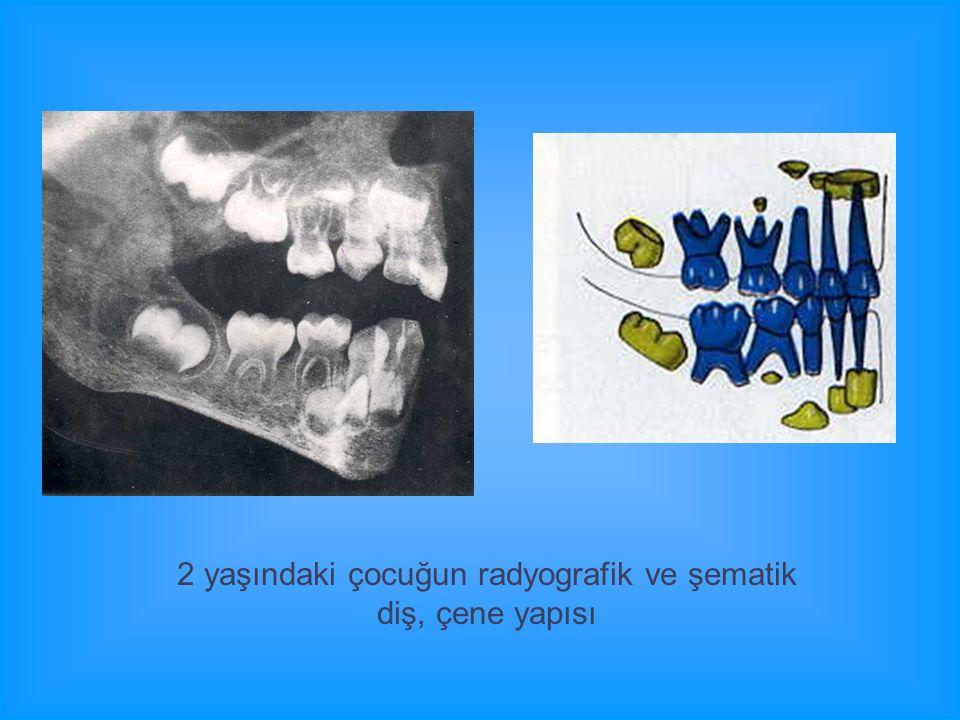 2 yaşındaki çocuğun radyografik ve şematik diş, çene yapısı