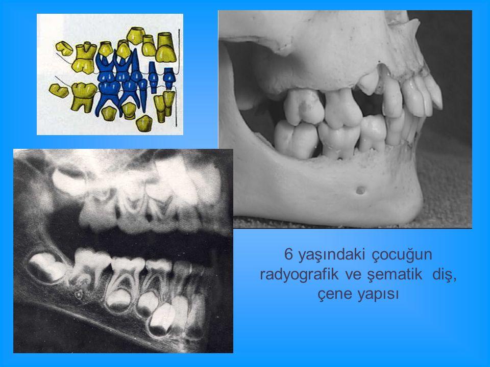 6 yaşındaki çocuğun radyografik ve şematik diş, çene yapısı