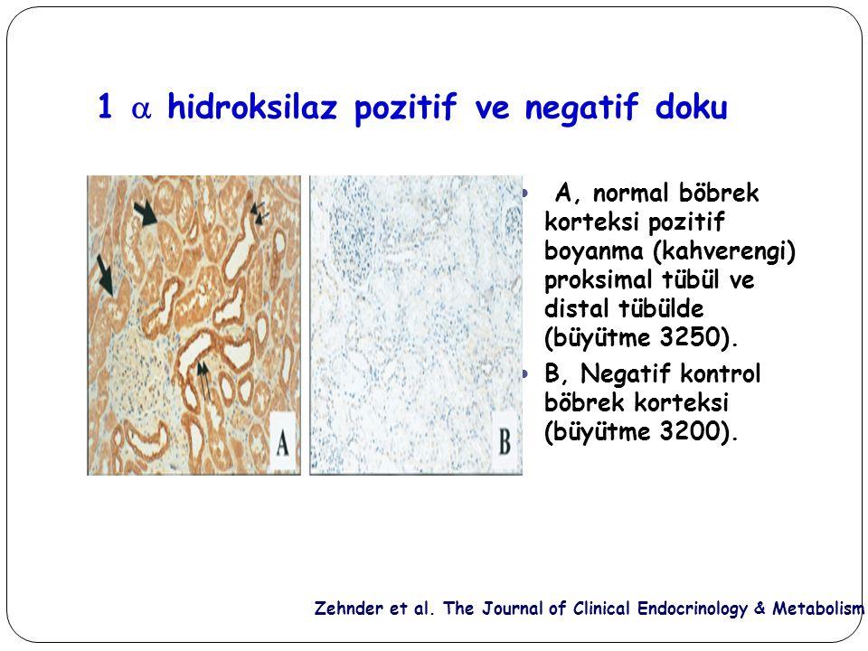 1  hidroksilaz pozitif ve negatif doku Zehnder et al. The Journal of Clinical Endocrinology & Metabolism A, normal böbrek korteksi pozitif boyanma (k