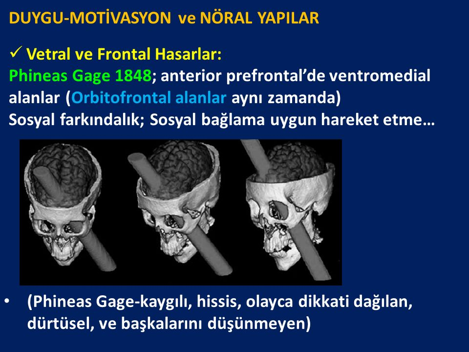 DUYGU-MOTİVASYON ve NÖRAL YAPILAR Vetral ve Frontal Hasarlar: Phineas Gage 1848; anterior prefrontal'de ventromedial alanlar (Orbitofrontal alanlar ay