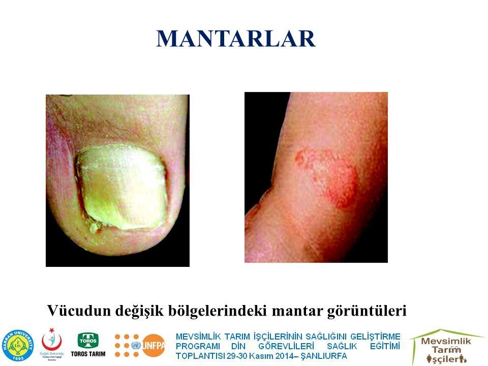 MANTARLAR Vücudun değişik bölgelerindeki mantar görüntüleri 53