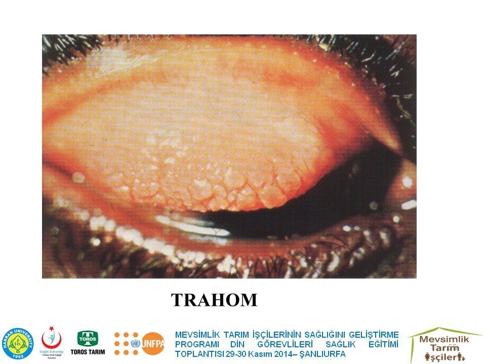 TRAHOM 55