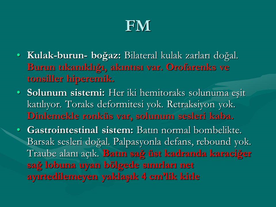 FM Kulak-burun- boğaz: Bilateral kulak zarları doğal. Burun tıkanıklığı, akıntısı var. Orofarenks ve tonsiller hiperemik.Kulak-burun- boğaz: Bilateral