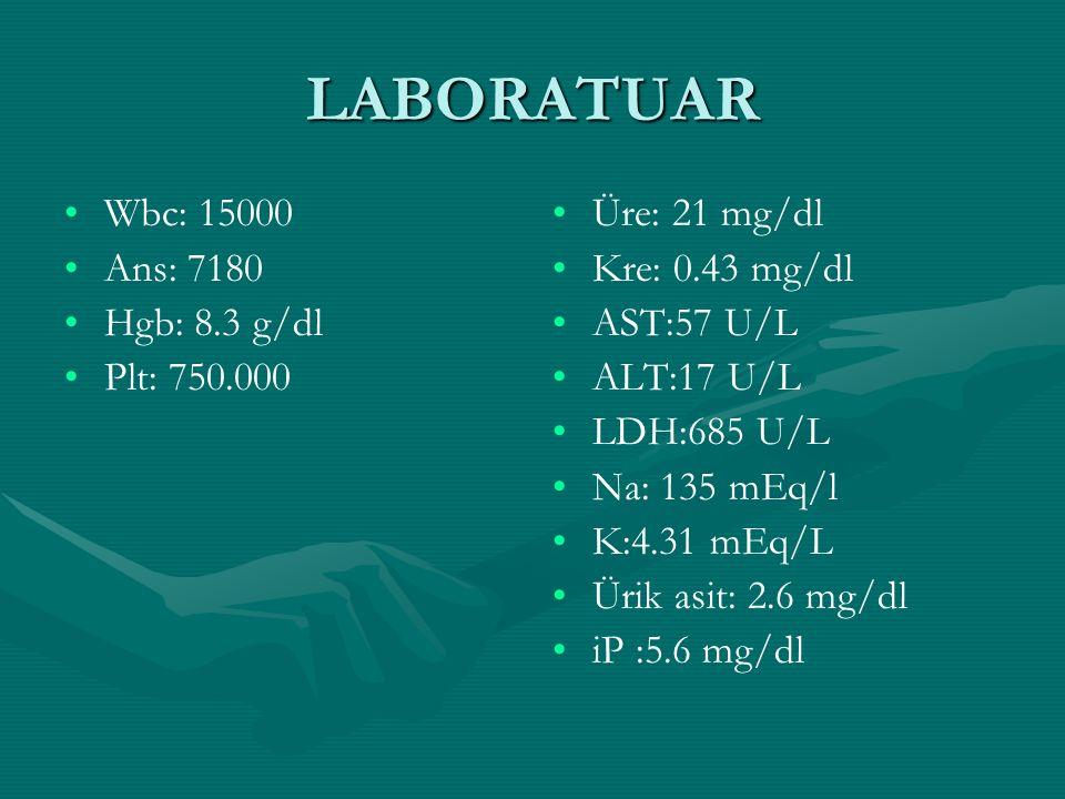 LABORATUAR Wbc: 15000 Ans: 7180 Hgb: 8.3 g/dl Plt: 750.000 Üre: 21 mg/dl Kre: 0.43 mg/dl AST:57 U/L ALT:17 U/L LDH:685 U/L Na: 135 mEq/l K:4.31 mEq/L Ürik asit: 2.6 mg/dl iP :5.6 mg/dl