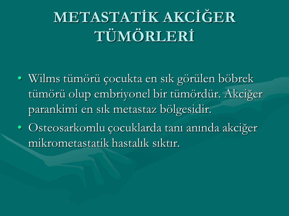 METASTATİK AKCİĞER TÜMÖRLERİ Wilms tümörü çocukta en sık görülen böbrek tümörü olup embriyonel bir tümördür. Akciğer parankimi en sık metastaz bölgesi