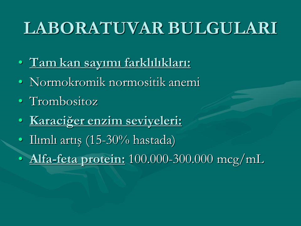 LABORATUVAR BULGULARI Tam kan sayımı farklılıkları:Tam kan sayımı farklılıkları: Normokromik normositik anemiNormokromik normositik anemi TrombositozTrombositoz Karaciğer enzim seviyeleri:Karaciğer enzim seviyeleri: Ilımlı artış (15-30% hastada)Ilımlı artış (15-30% hastada) Alfa-feta protein: 100.000-300.000 mcg/mLAlfa-feta protein: 100.000-300.000 mcg/mL