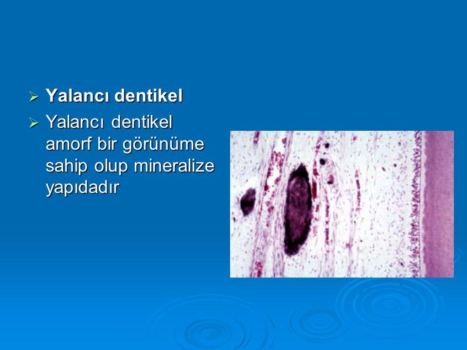  Yalancı dentikel  Yalancı dentikel amorf bir görünüme sahip olup mineralize yapıdadır