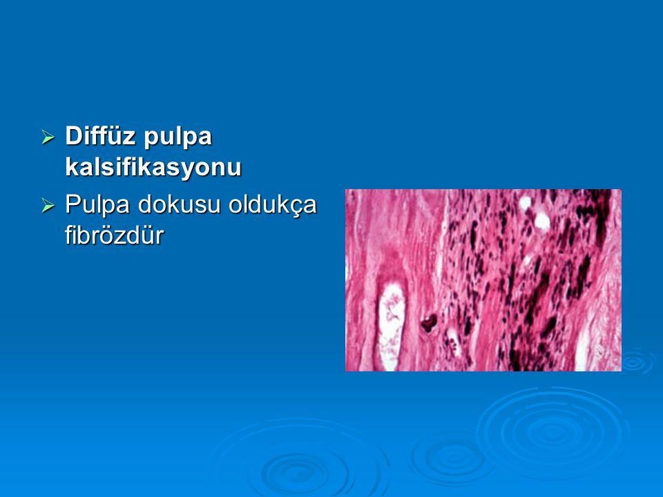  Pulpa dokusu oldukça fibrözdür