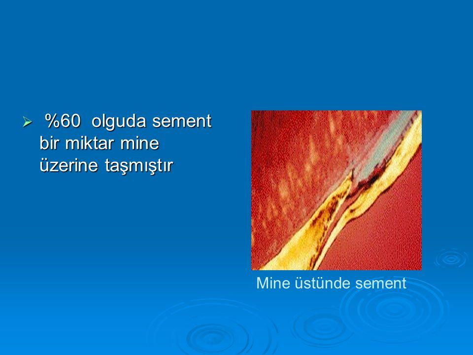  %60 olguda sement bir miktar mine üzerine taşmıştır Mine üstünde sement