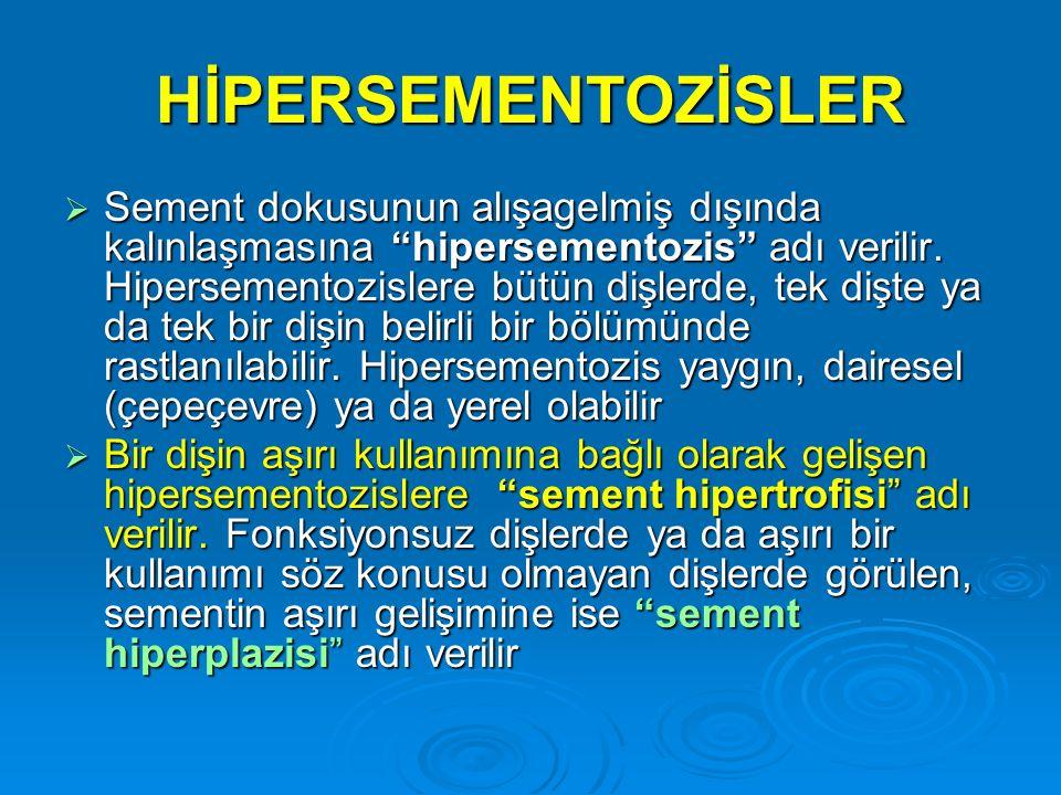 """HİPERSEMENTOZİSLER  Sement dokusunun alışagelmiş dışında kalınlaşmasına """"hipersementozis"""" adı verilir. Hipersementozislere bütün dişlerde, tek dişte"""