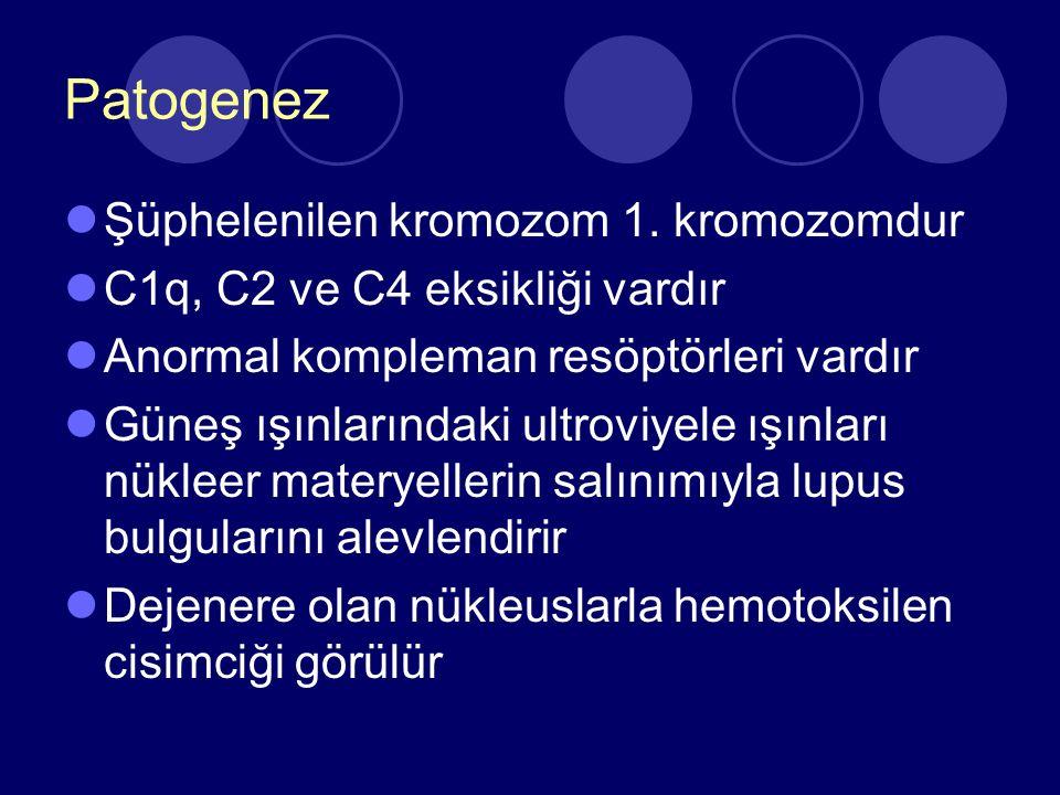 Klinik Genel: Yorgunluk, anoreksi, kilo kaybı, uzayan ateş, lenfadenopati Kas-iskelet: Artralji, artrit Cilt: Malar rash, diskoid lezyon, livido retikülaris, vaskülit Renal: Glomerulonefrit, ht, nefrotik sendrom, böbrek yetmezliği Kardiyovasküler: Perikardit (Kardiyak tamponat)