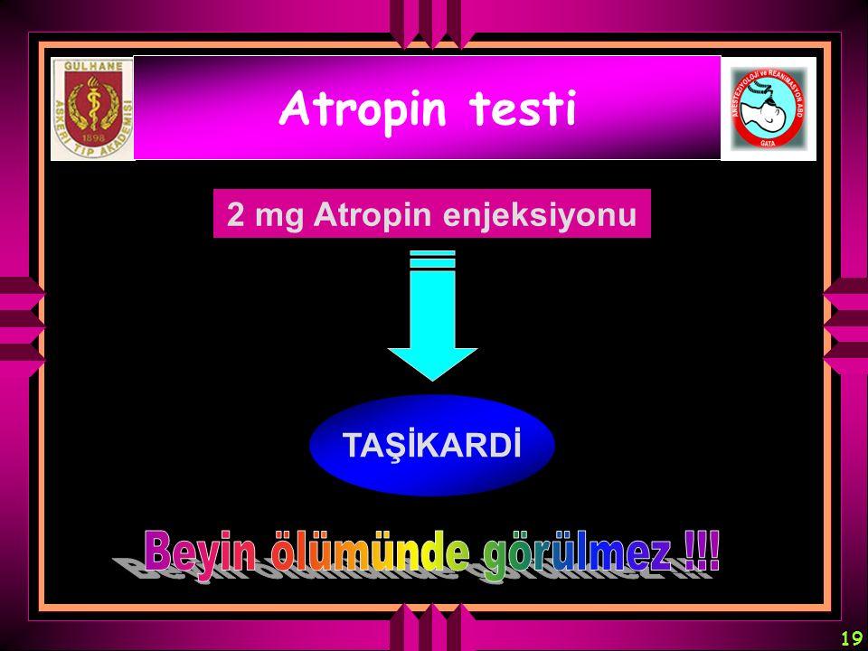 19 Atropin testi 2 mg Atropin enjeksiyonu TAŞİKARDİ