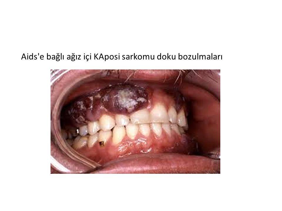 Aids'e bağlı ağız içi KAposi sarkomu doku bozulmaları