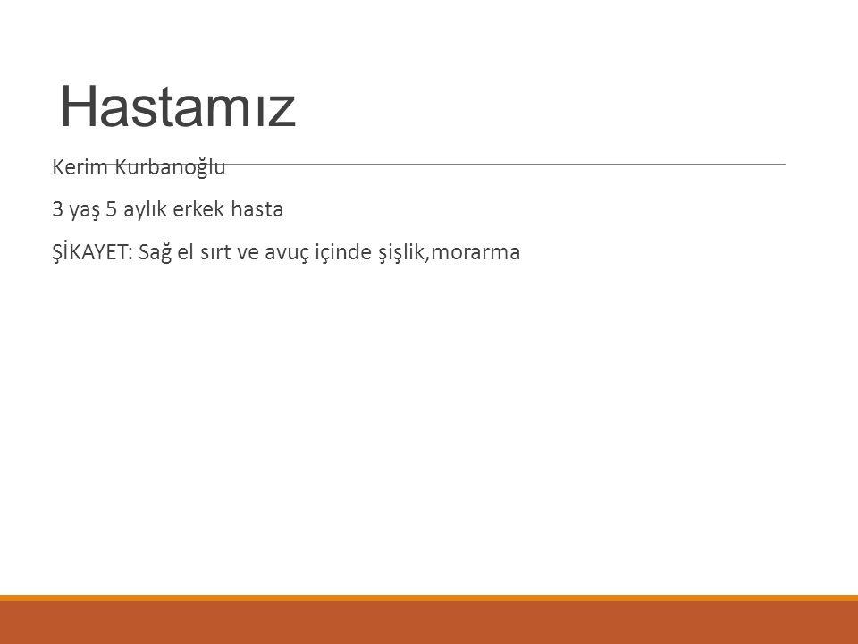 Hastamız Kerim Kurbanoğlu 3 yaş 5 aylık erkek hasta ŞİKAYET: Sağ el sırt ve avuç içinde şişlik,morarma
