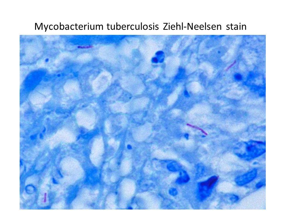 Mycobacterium tuberculosis Ziehl-Neelsen stain