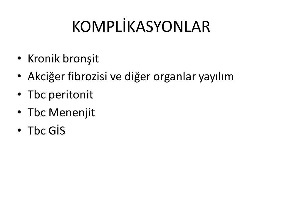 KOMPLİKASYONLAR Kronik bronşit Akciğer fibrozisi ve diğer organlar yayılım Tbc peritonit Tbc Menenjit Tbc GİS