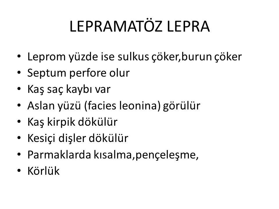 LEPRAMATÖZ LEPRA Leprom yüzde ise sulkus çöker,burun çöker Septum perfore olur Kaş saç kaybı var Aslan yüzü (facies leonina) görülür Kaş kirpik dökülü