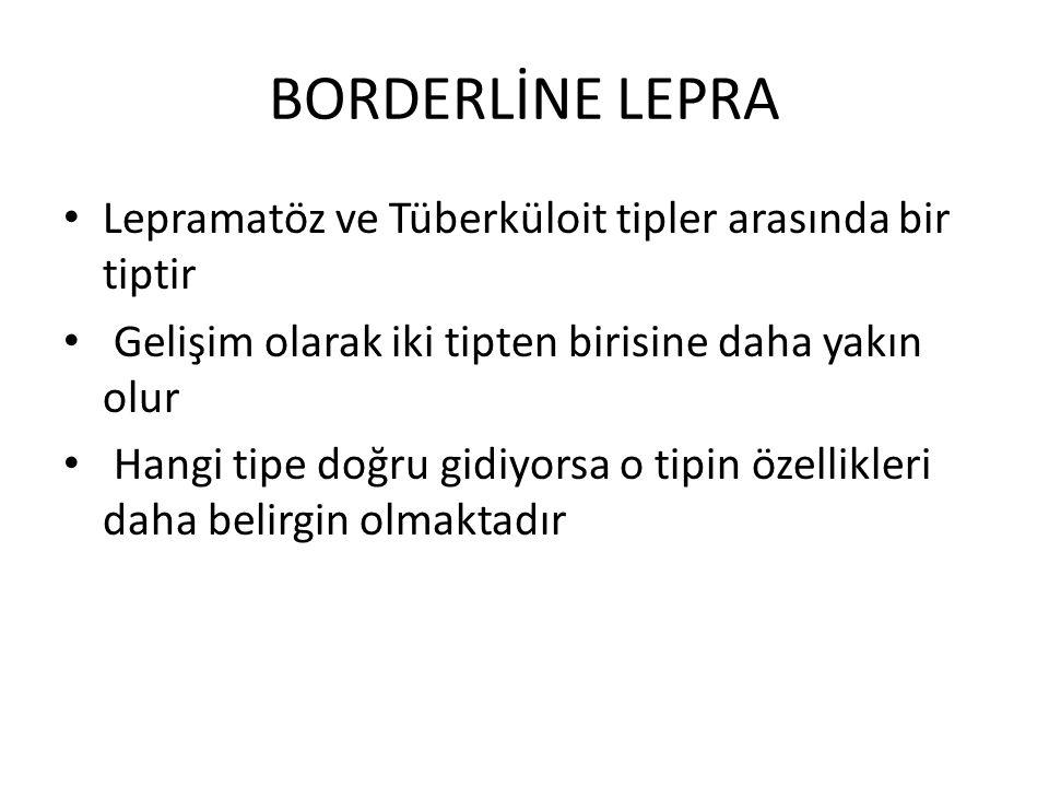 BORDERLİNE LEPRA Lepramatöz ve Tüberküloit tipler arasında bir tiptir Gelişim olarak iki tipten birisine daha yakın olur Hangi tipe doğru gidiyorsa o