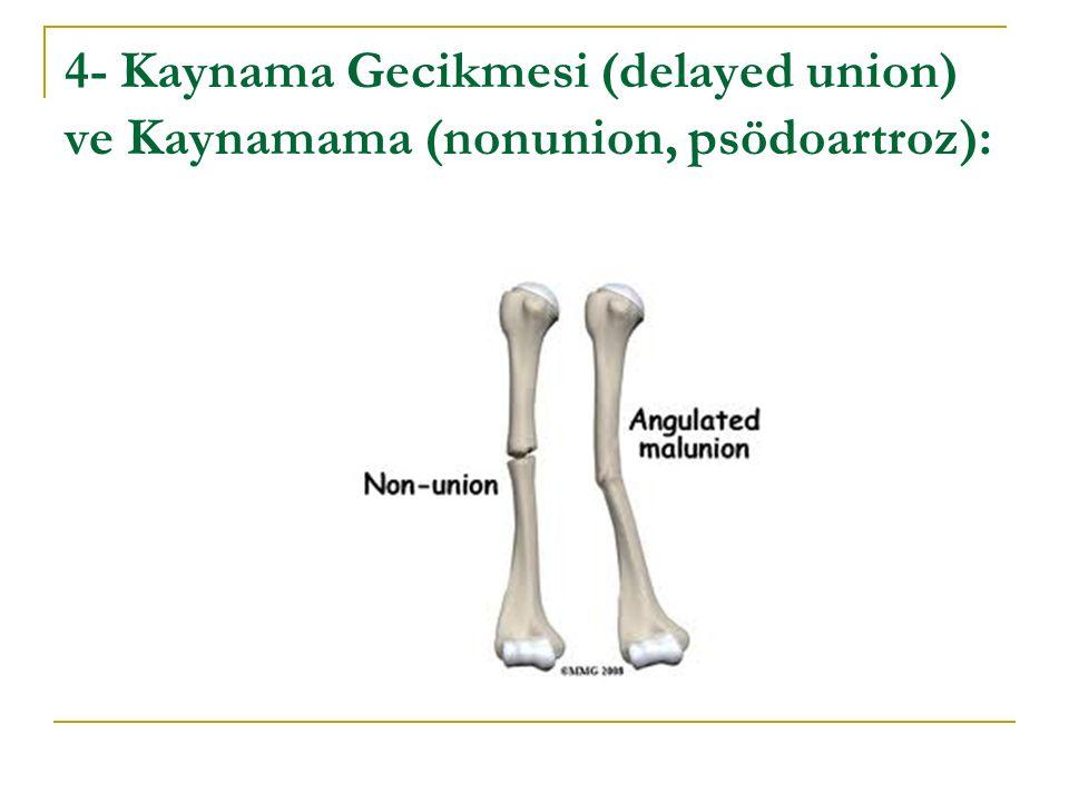 4- Kaynama Gecikmesi (delayed union) ve Kaynamama (nonunion, psödoartroz):