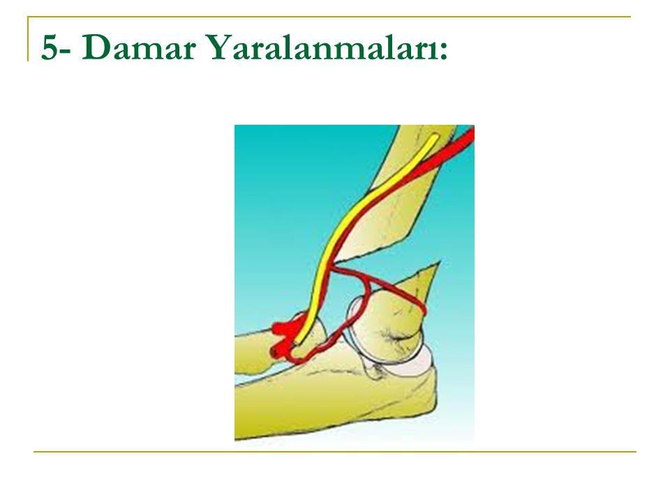 5- Damar Yaralanmaları: