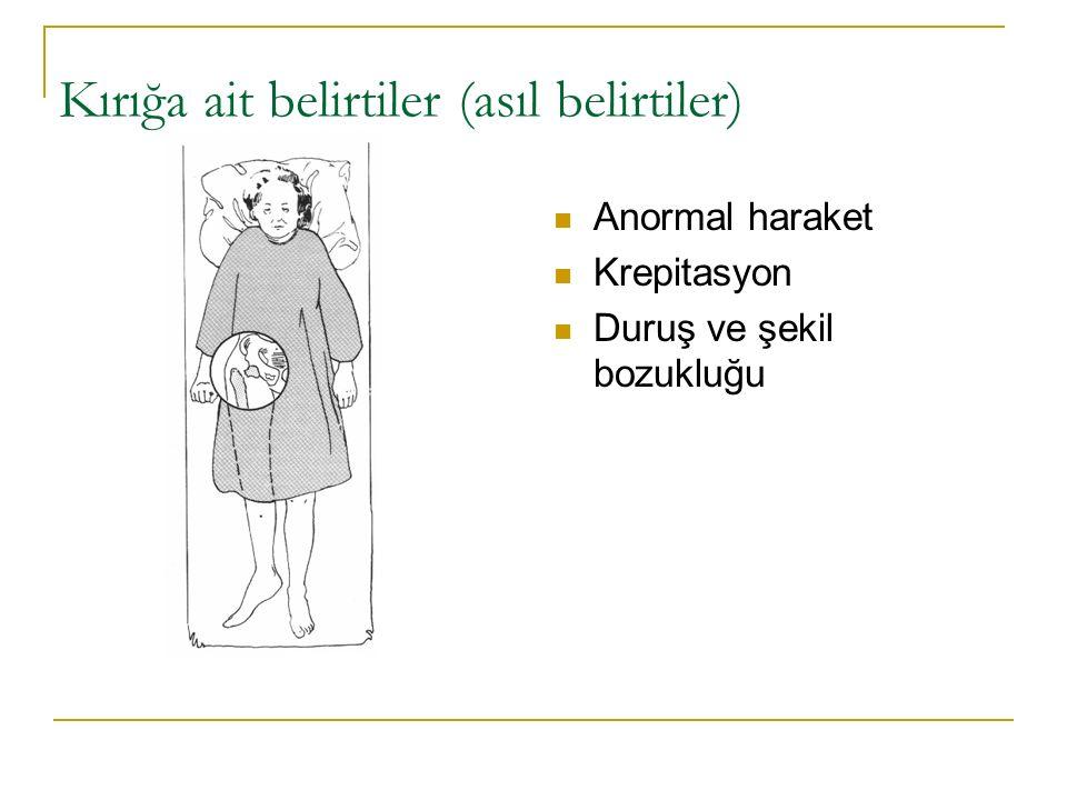 Kırığa ait belirtiler (asıl belirtiler) Anormal haraket Krepitasyon Duruş ve şekil bozukluğu