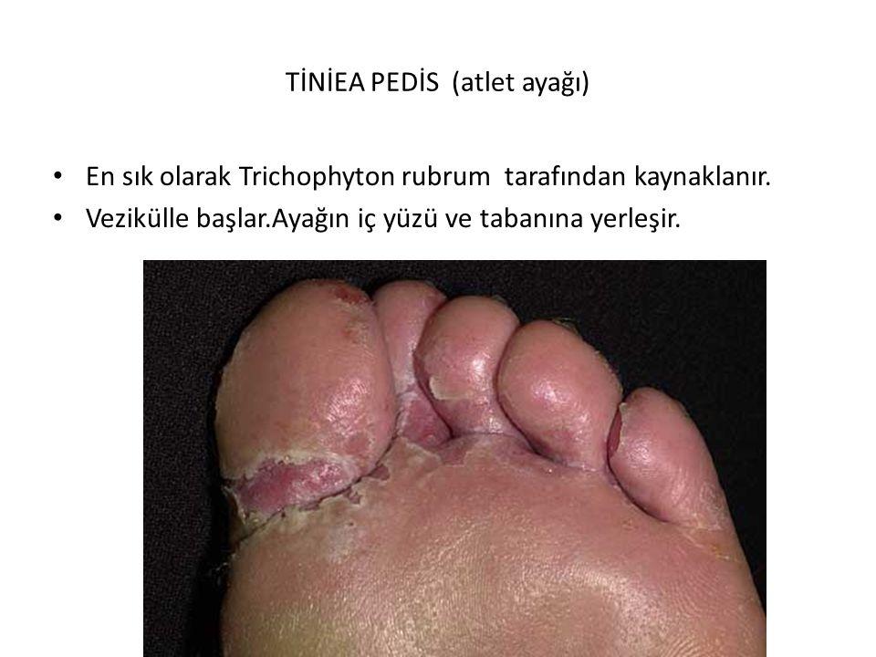 TİNİEA PEDİS (atlet ayağı) En sık olarak Trichophyton rubrum tarafından kaynaklanır.