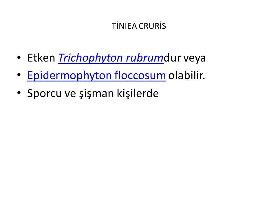 TİNİEA CRURİS Etken Trichophyton rubrumdur veyaTrichophyton rubrum Epidermophyton floccosum olabilir.