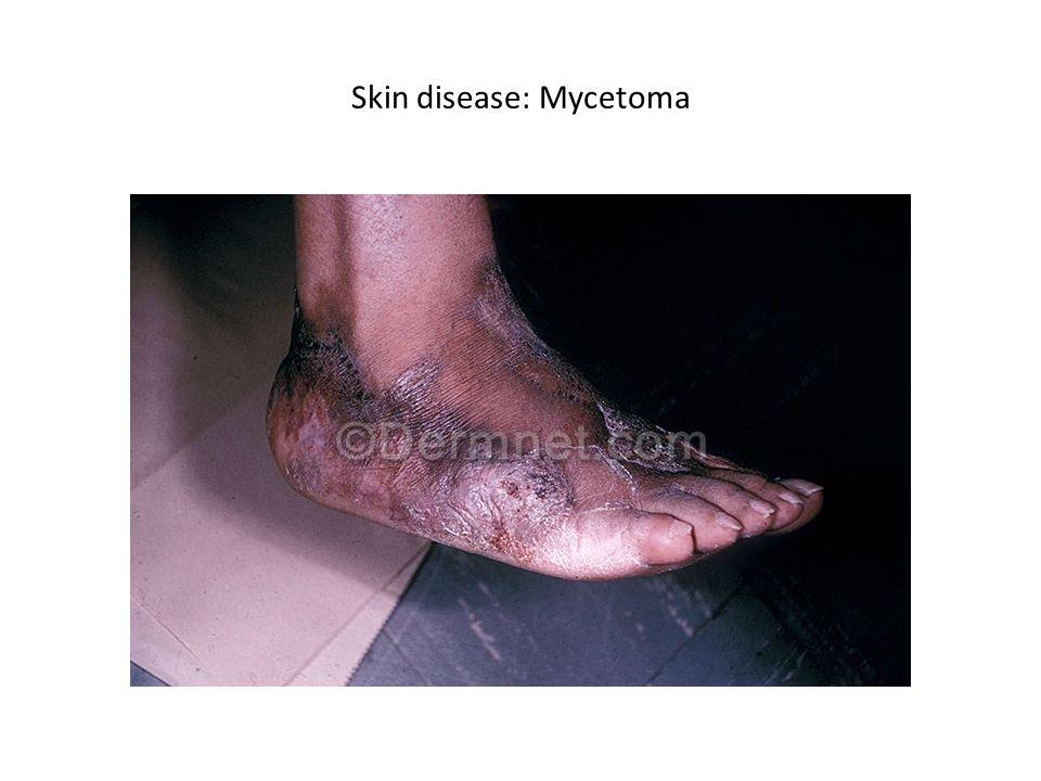 Skin disease: Mycetoma
