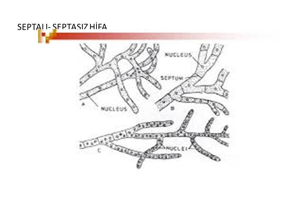 SEPTALI- SEPTASIZ HİFA