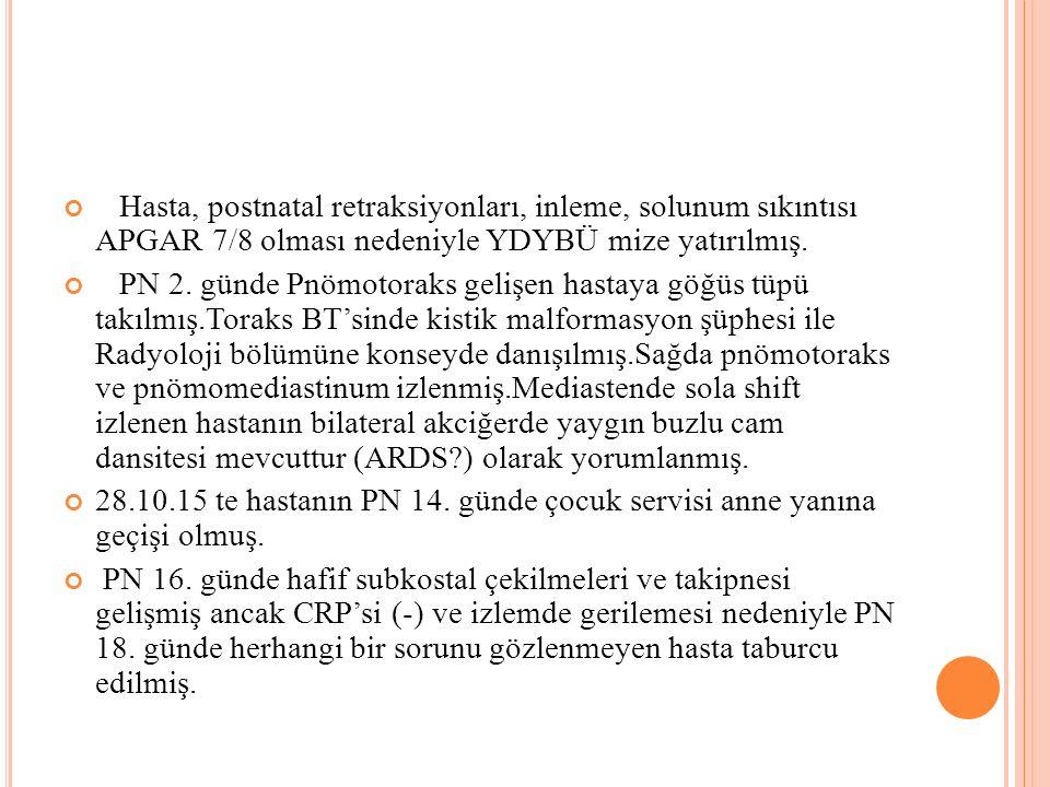 Hasta, postnatal retraksiyonları, inleme, solunum sıkıntısı APGAR 7/8 olması nedeniyle YDYBÜ mize yatırılmış.