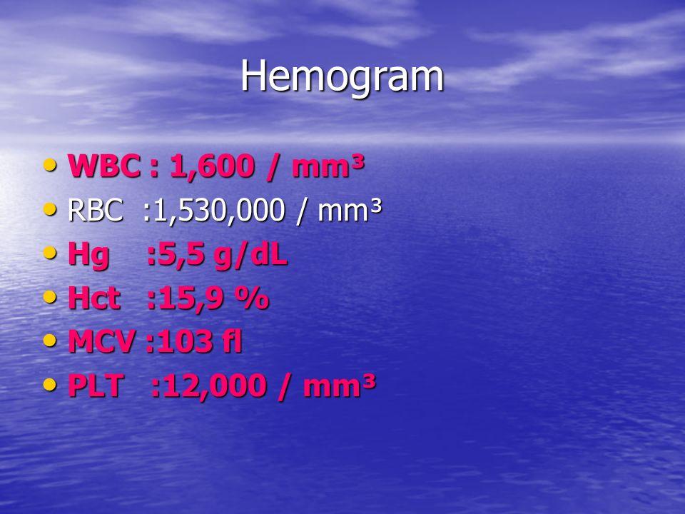 Hemogram WBC : 1,600 / mm³ WBC : 1,600 / mm³ RBC :1,530,000 / mm³ RBC :1,530,000 / mm³ Hg :5,5 g/dL Hg :5,5 g/dL Hct :15,9 % Hct :15,9 % MCV :103 fl M