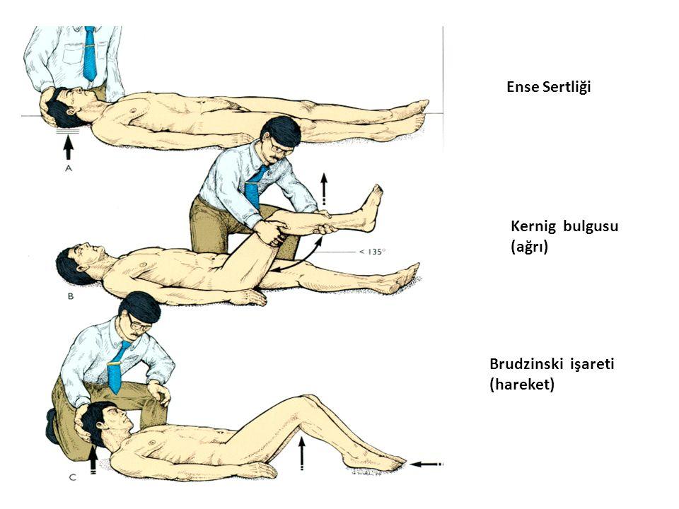 Ense Sertliği Kernig bulgusu (ağrı) Brudzinski işareti (hareket)