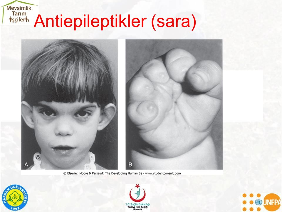 Antiepileptikler (sara)