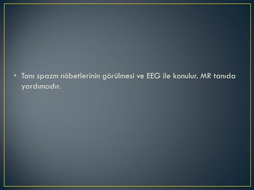 Tanı spazm nöbetlerinin görülmesi ve EEG ile konulur. MR tanıda yardımcıdır.
