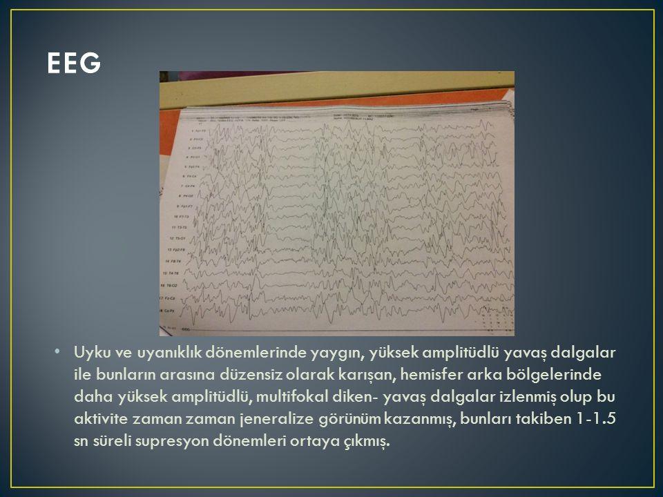 Uyku ve uyanıklık dönemlerinde yaygın, yüksek amplitüdlü yavaş dalgalar ile bunların arasına düzensiz olarak karışan, hemisfer arka bölgelerinde daha yüksek amplitüdlü, multifokal diken- yavaş dalgalar izlenmiş olup bu aktivite zaman zaman jeneralize görünüm kazanmış, bunları takiben 1-1.5 sn süreli supresyon dönemleri ortaya çıkmış.