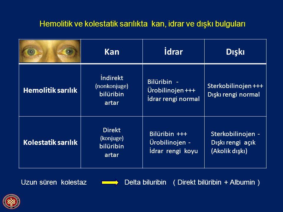 KanİdrarDışkı Hemolitik sarılık İndirekt (nonkonjuge) bilüribin artar Bilüribin - Ürobilinojen +++ İdrar rengi normal Sterkobilinojen +++ Dışkı rengi
