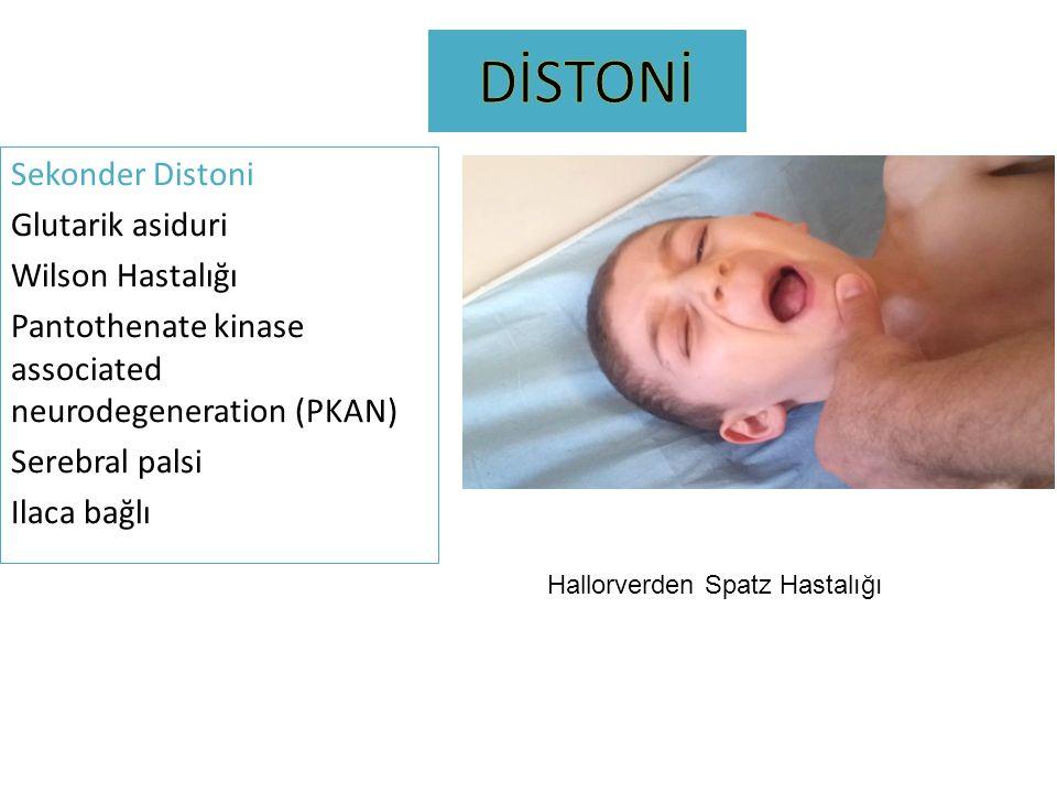 Sekonder Distoni Glutarik asiduri Wilson Hastalığı Pantothenate kinase associated neurodegeneration (PKAN) Serebral palsi Ilaca bağlı Hallorverden Spa