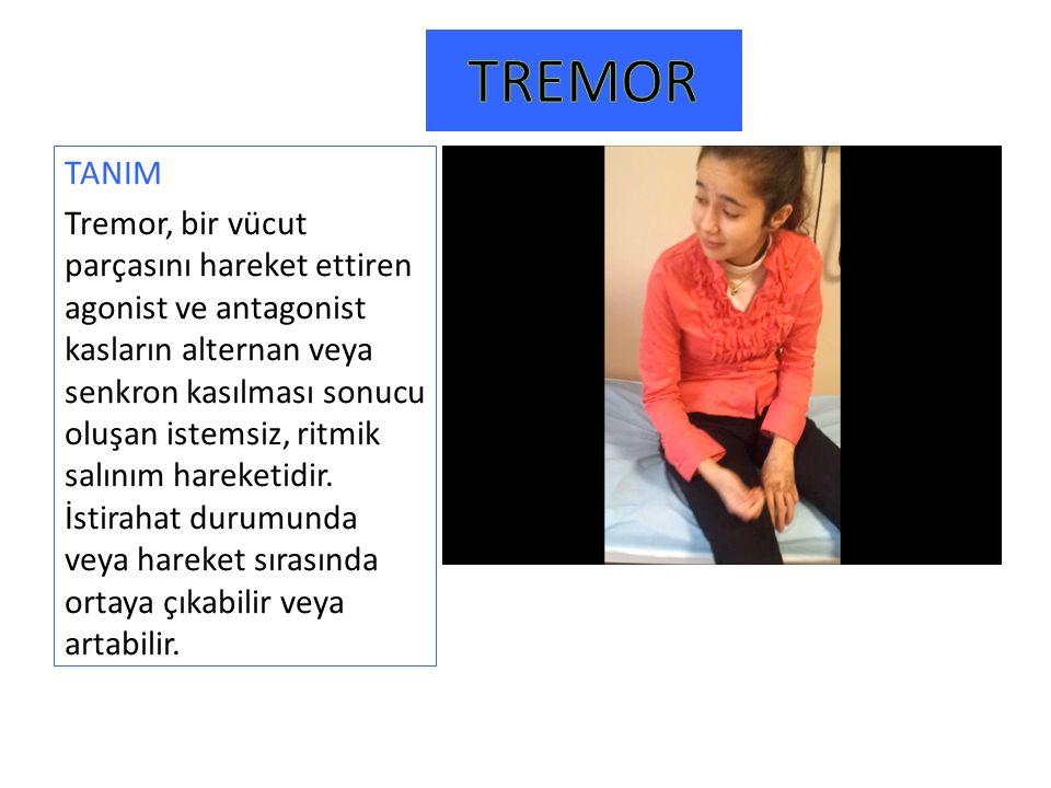 TANIM Tremor, bir vücut parçasını hareket ettiren agonist ve antagonist kasların alternan veya senkron kasılması sonucu oluşan istemsiz, ritmik salını