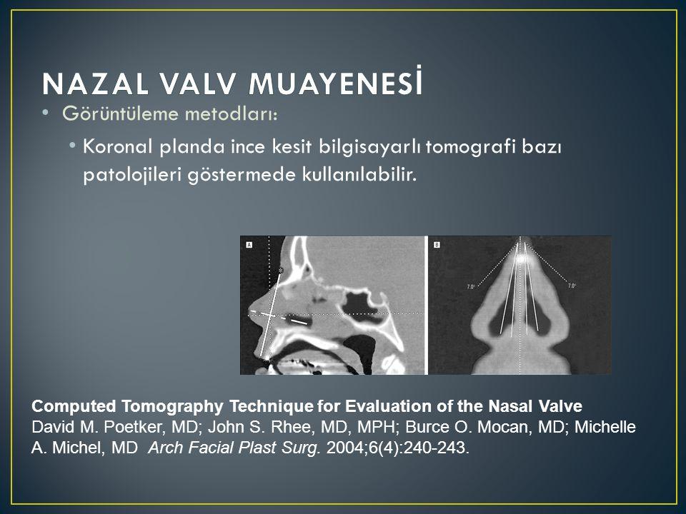 Görüntüleme metodları: Koronal planda ince kesit bilgisayarlı tomografi bazı patolojileri göstermede kullanılabilir. Computed Tomography Technique for
