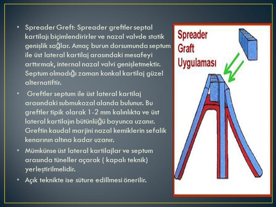 Spreader Greft: Spreader greftler septal kartilajı biçimlendirirler ve nazal valvde statik genişlik sa ğ lar. Amaç burun dorsumunda septum ile üst lat