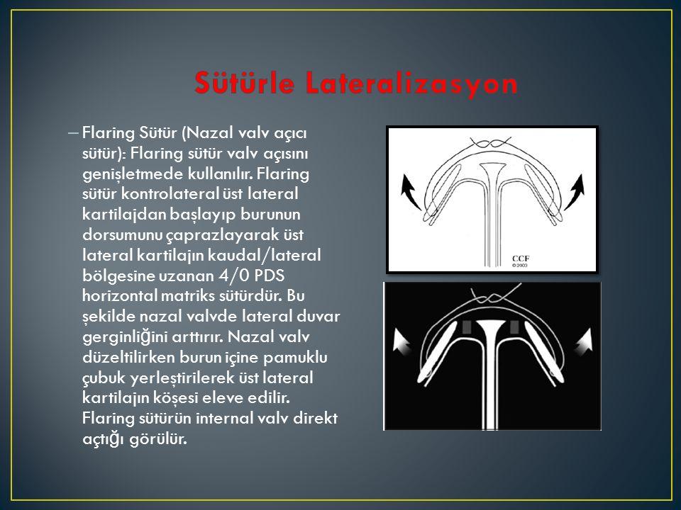 – Flaring Sütür (Nazal valv açıcı sütür): Flaring sütür valv açısını genişletmede kullanılır. Flaring sütür kontrolateral üst lateral kartilajdan başl