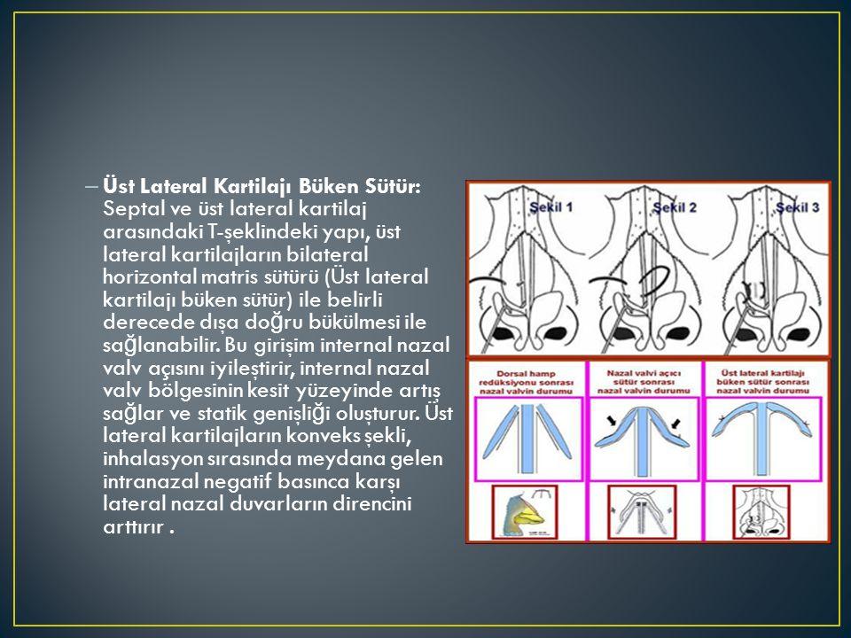 – Üst Lateral Kartilajı Büken Sütür: Septal ve üst lateral kartilaj arasındaki T-şeklindeki yapı, üst lateral kartilajların bilateral horizontal matri